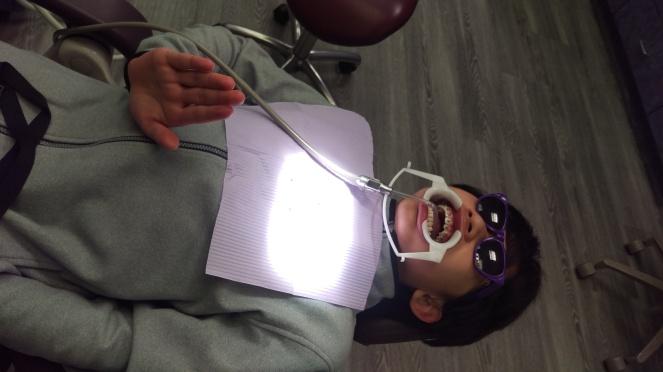 shen braces pic